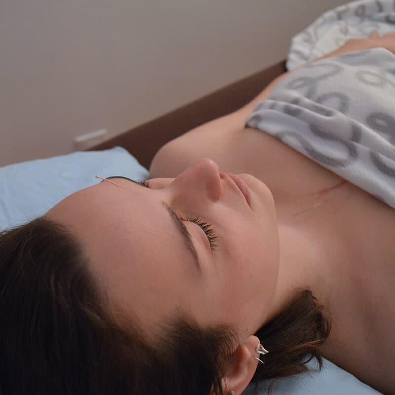 Femme sereine traitée à l'aide de l'acupuncture à l'aiguille - Une aiguille est placé sur son front et sur don torse