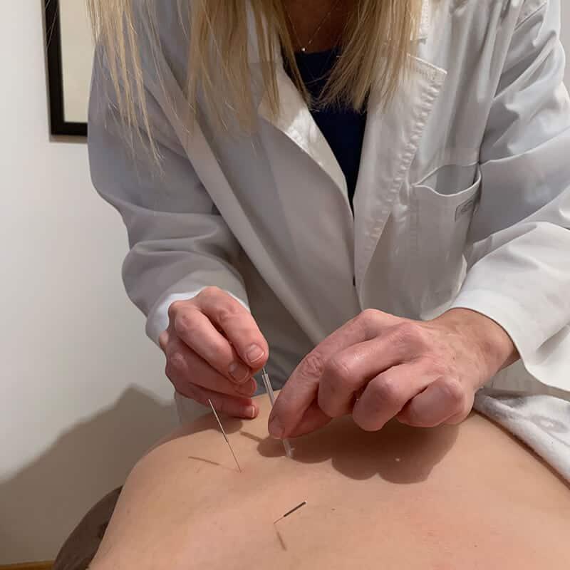 Marie-Andrée traitant à l'aide d'aiguille placées dans le dos les troubles de l'anxiété d'une patiente.