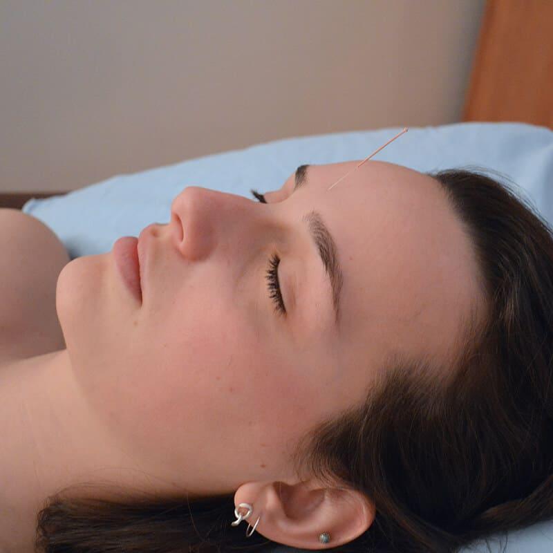 Femme sereine traitée à l'aide de l'acupuncture à l'aiguille - Une aiguille est placé sur son front