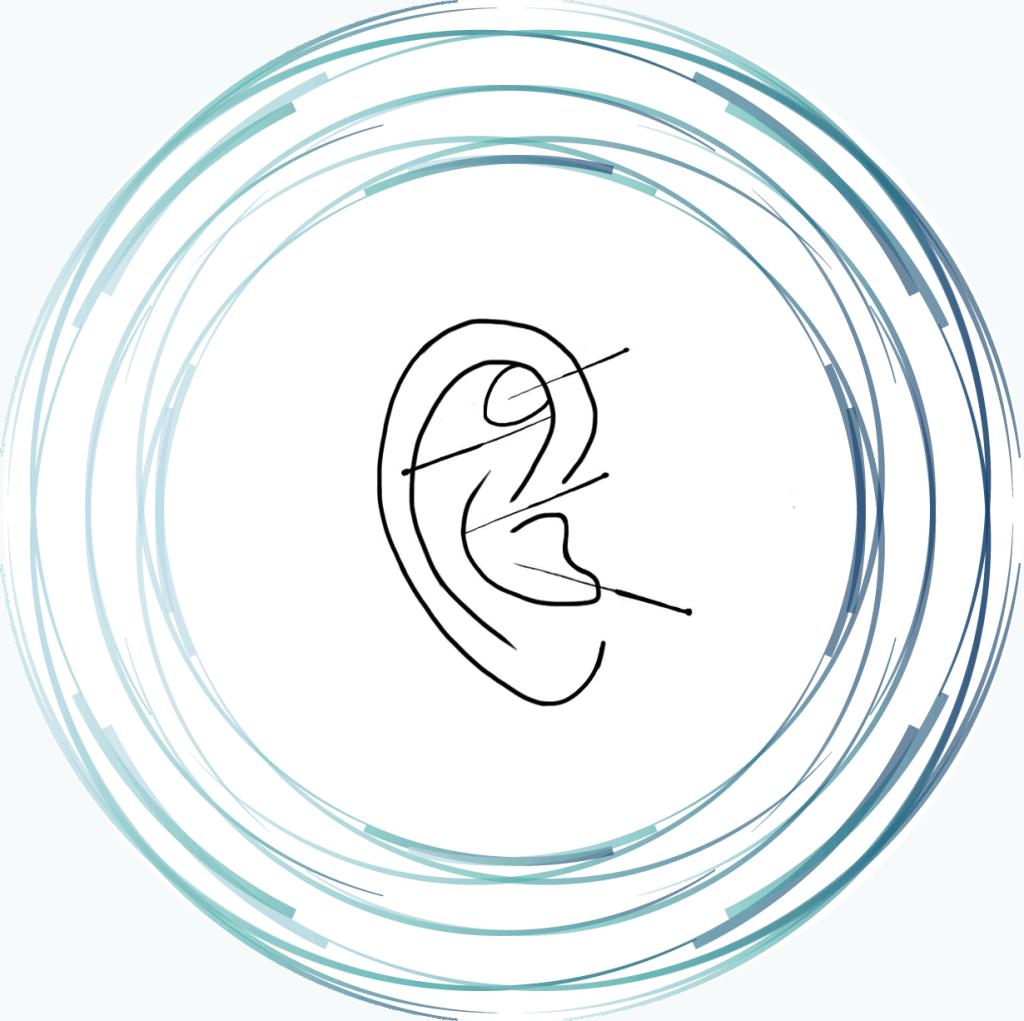 Image d'aiguille placées dans une oreille représentant le service d'auriculopuncture - ponctures aux oreilles